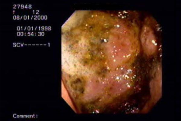 Stomach Tumor